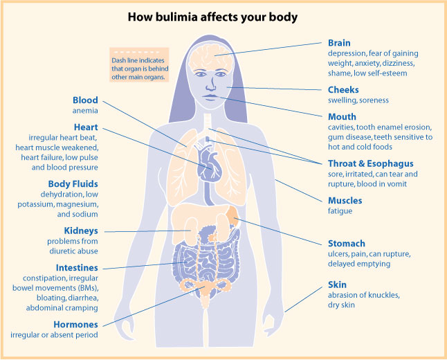 best treatment clinic for Bulimia Nervosa in chennai