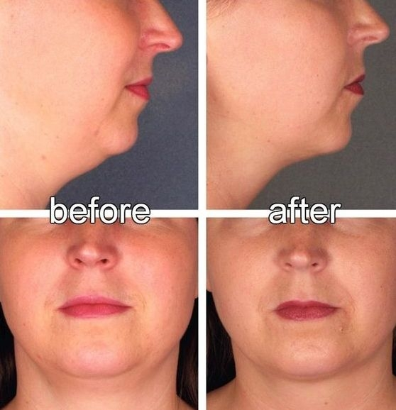 How To Get Rid Of A Double Chin Fast With Facelift Exercises May 2017