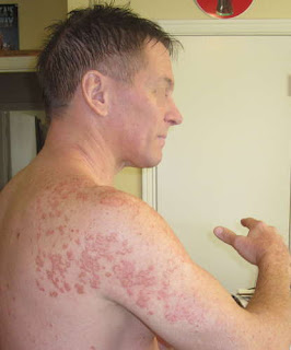 Side effects of hepatitis C medication as seen in the presence of rashes on the patient's arms pics