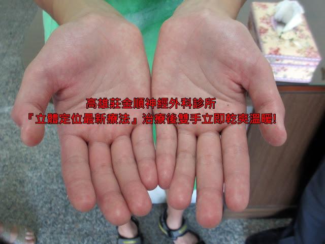彰化許同學至高雄莊金順診所進行手汗治療