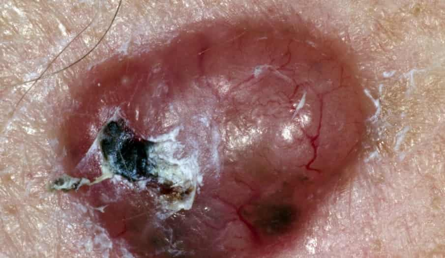 What Does Skin Cancer Look Like NHS