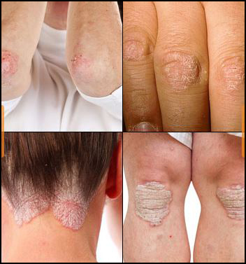 Psoriasis, skin problems, herbal remedies, psoriasis