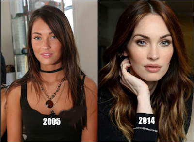 Megan Fox Plastic Surgery Before And After Botox Injection