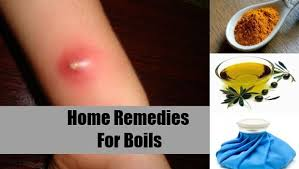 Home Remedies for Boils that Really Work | How To Get Rid Of A Boil Fast Naturally At Home