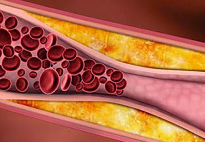 more and more fat and other substances to the inside of our arteries paste Arteriosclerosis Definition : What Is Arteriosclerosis?