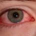 Mengatasi Mata Merah Yang Disarankan Oleh Medis