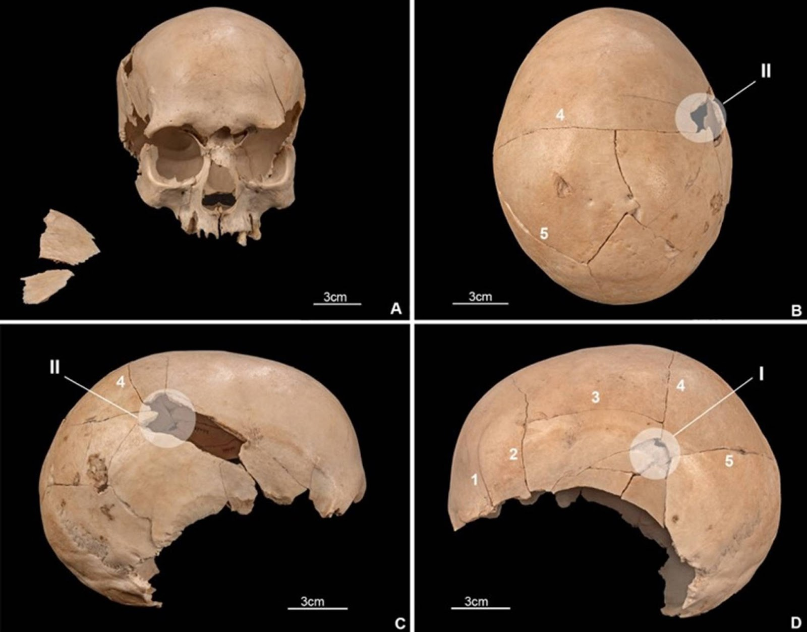 Cráneo de uno de los individuos asesinados en la cueva de Els Trocs, con impactos de flechas y objetos contundentes. Foto: MANUEL A. ROJO / KURT W. ALT