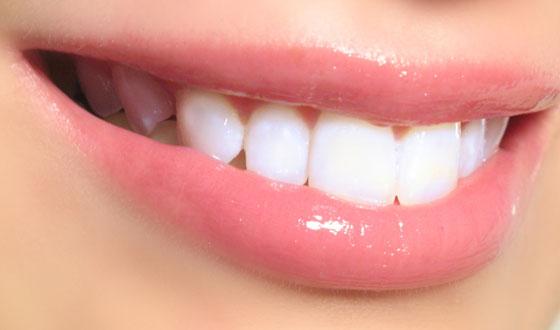 Cara Mengatasi Sakit Gigi dengan Mudah