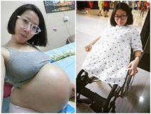 Bà mẹ cụt 2 chân vẫn sinh con như chuyện cổ tích