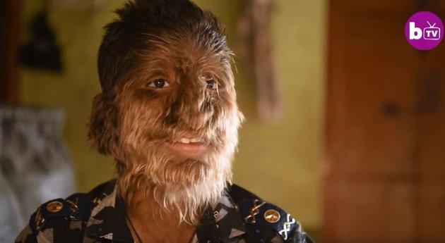 «Με αποκαλούν πίθηκο και μου πετούν πέτρες» - Η ιστορία του αγοριού με το σύνδρομο του λυκανθρώπου