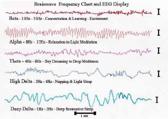 Ear Ringing Sound Logic