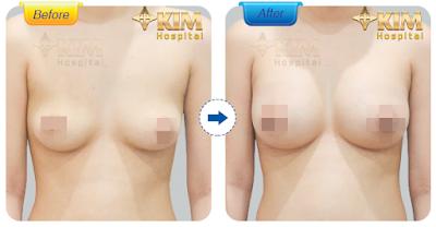 Phẫu thuật nâng ngực tại bệnh viện thẩm mỹ KIM mang lại khuôn ngực đẹp tự nhiên và cân đối.