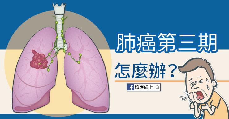 肺癌第三期怎麼辦?醫師圖文解說