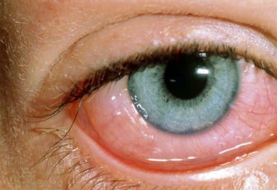 Tips Mengatasi Mata Gatal, Merah dan Berair