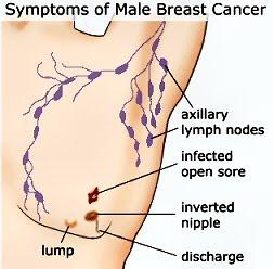 Breast Cancer In Men Yes It Happens Betterhealthfacts Com