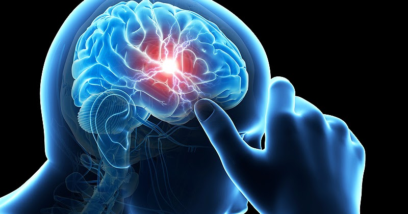 Image result for सिरदर्द या माइग्रेन