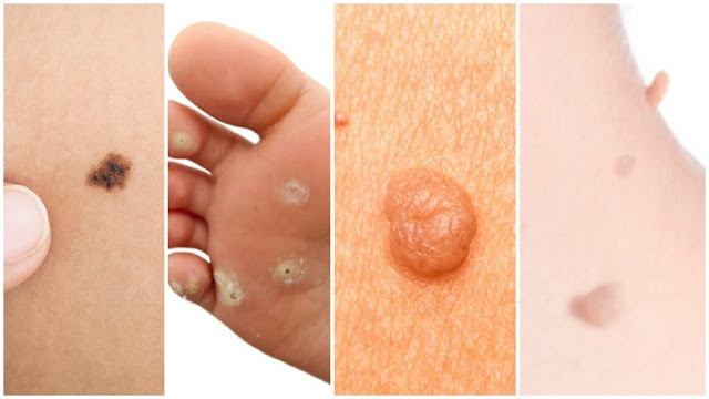 Complete Guide To Removing Warts, Moles, Skin Tags and Oil Clogs Naturally