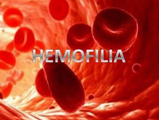 Makalah Lengkap Biologi Reproduksi Tentang Hemofilia