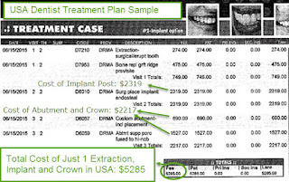 How Many Dental Implants Cost With Insurance