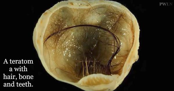 A Teratoma with hair, bone and teeth.