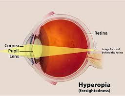 hyperopia-www.healthnote25.com
