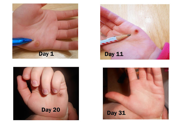 Wart Stages How To Get Rid Of A Wart In The Early Stages