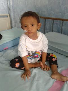 Gea Annafi Kyla Putri penderita atresia bilier asal karanganyar