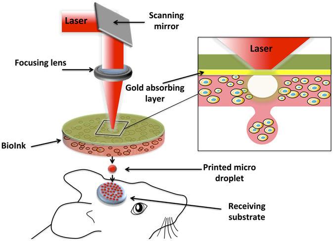 laser bioprinting