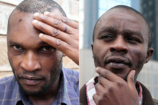 How This Man Was Mistakenly Given A Brain Surgery After Mix-Up At Hospital
