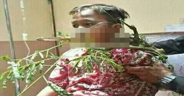 Bocah ini Tertusuk Batang Pohon Hingga Menembus Mulut, Orangtua Wajib Tingkatkan Pengawasan
