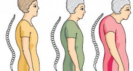 Kemik Erimesini Azaltmak için 5 Öneri