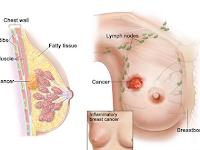 Bagaimana Cara Herbal Mengobati Kanker