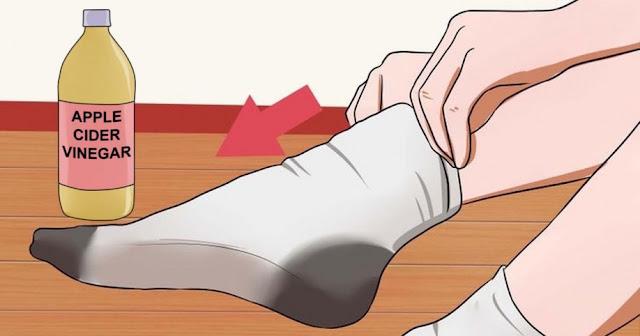 Image result for blood pressure vinegar pack