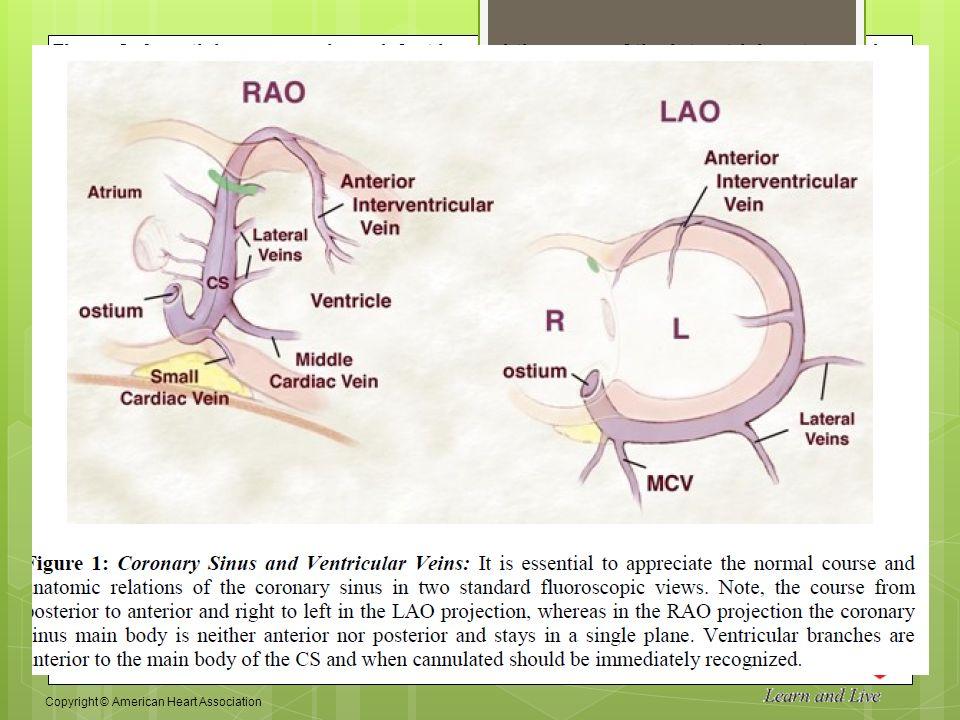 CVT Mohd Farid: Unroofed Coronary Sinus