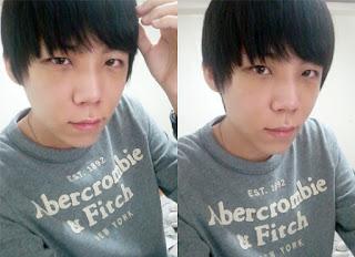 1 bulan sesudah operasi plastik mata, operasi plastik hidung, anti aging di Wonjin