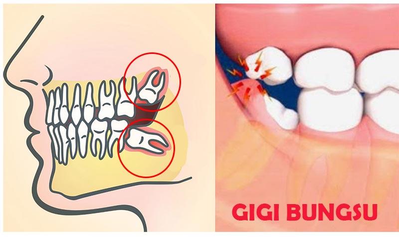 gigi bungsu, perlukah dicabut