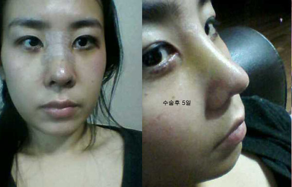 짱이뻐! - Korea Plastic Surgery Made Me 120% Satisfied Of My Side Profile