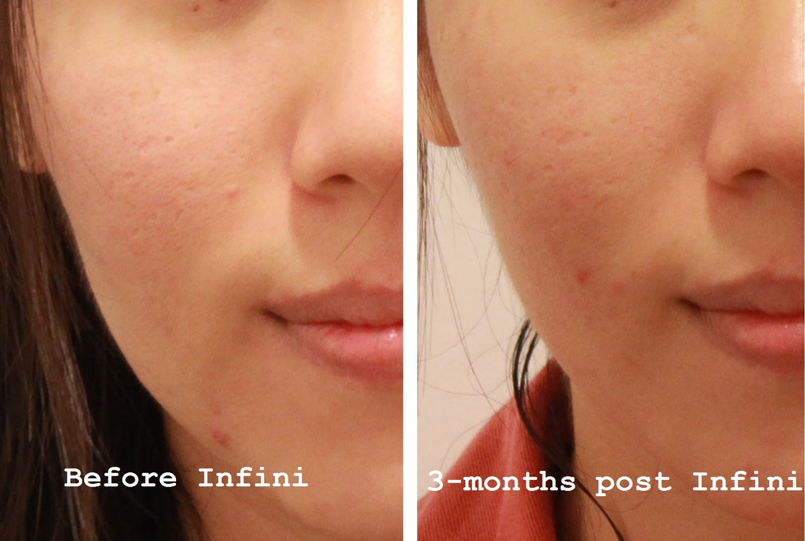 Treatment] Infini Fractional Radiofrequency for Depressed Acne Scars