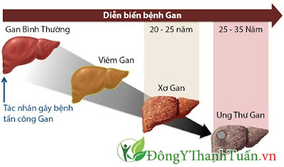 thuốc cà gai leo có tác dụng gì trong viêm gan B