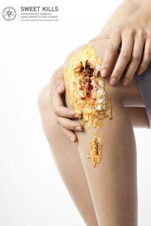 Iklan Luka Diabetes yang Paling Keren dan Kreatif Yang Pernah di Buat