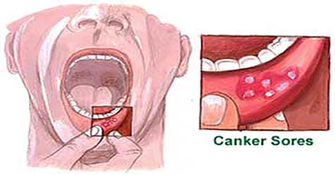 Canker Sores Causes Symptoms and Treatments