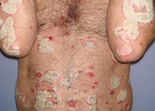 Remedios Caseros para la Psoriasis en el Cuerpo