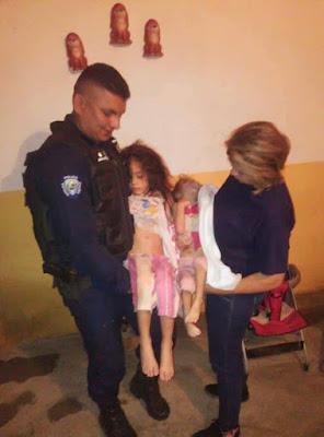 Hallan en Socopó de Barinas a dos niñas en avanzado estado de destrucción