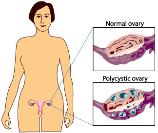 PCOS PCOD Best doctor treatment in chennai tamil nadu