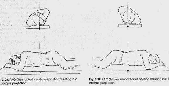 Oblique = Miring ( membentuk sudut lebih kecil dari 90o )