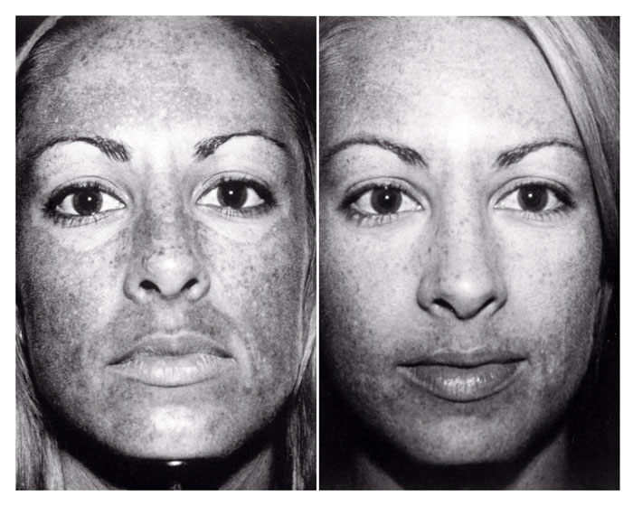 What I learned about skin care from a UV camera
