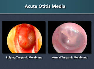 Consider, that Otitis media in adults treatment