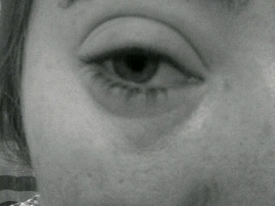 Swollen eye from eye eczema