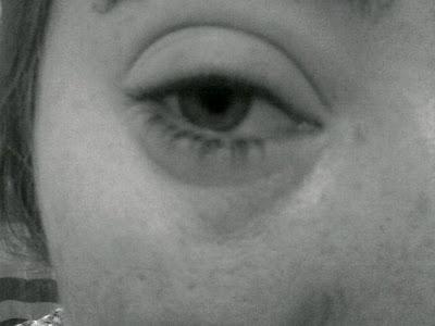 Swollen eye from eye eczema