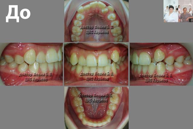 пять фото пациента в разных ракурсах до лечения